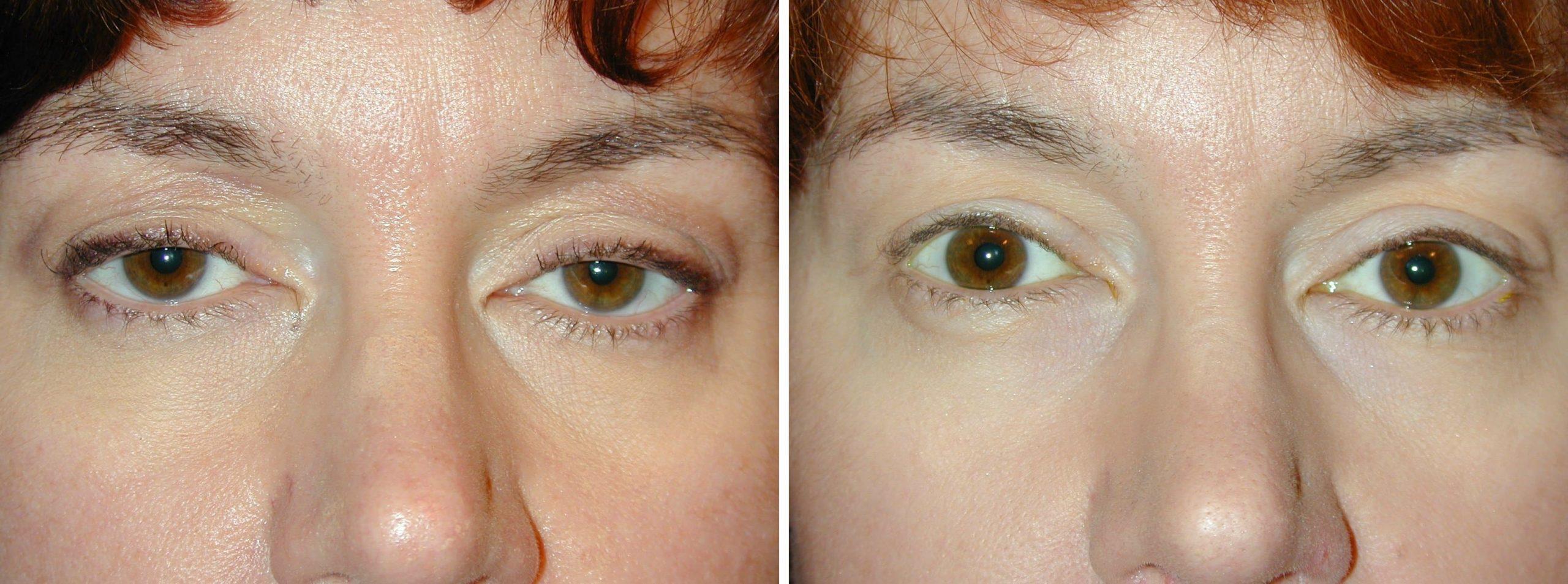 Botox Cause Droopy Eyelids